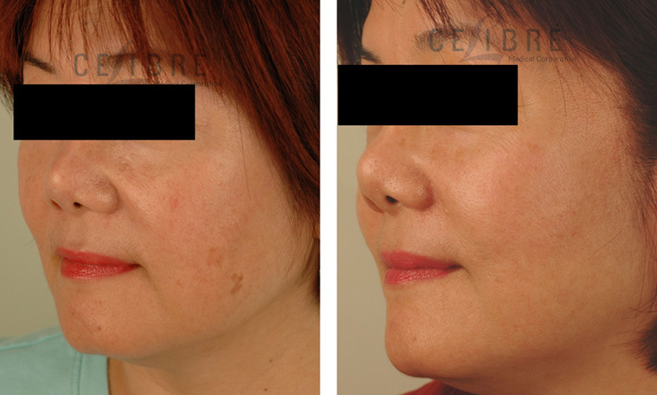 sun spot removal before and after picture